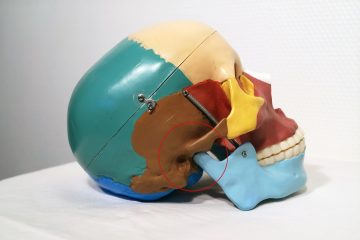 CMD Kieferbehandlung